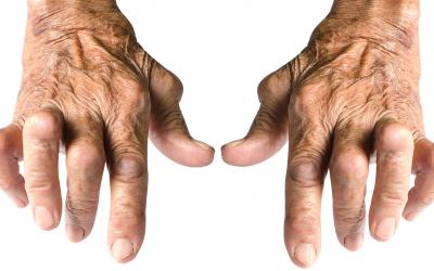 ¿Cómo controlar la artritis en las manos?