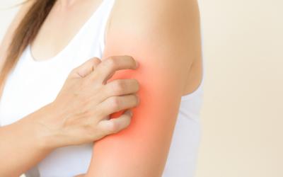 5 plantas para tratar las dermatitis de forma natural