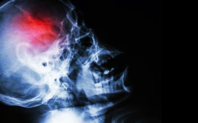 Reduce el riesgo de sufrir un derrame cerebral