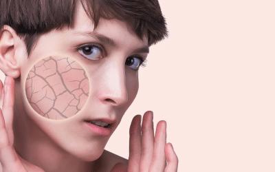 ¿Qué es la piel seca?