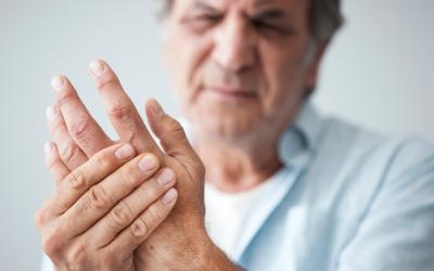 La artritis afecta mi día a día